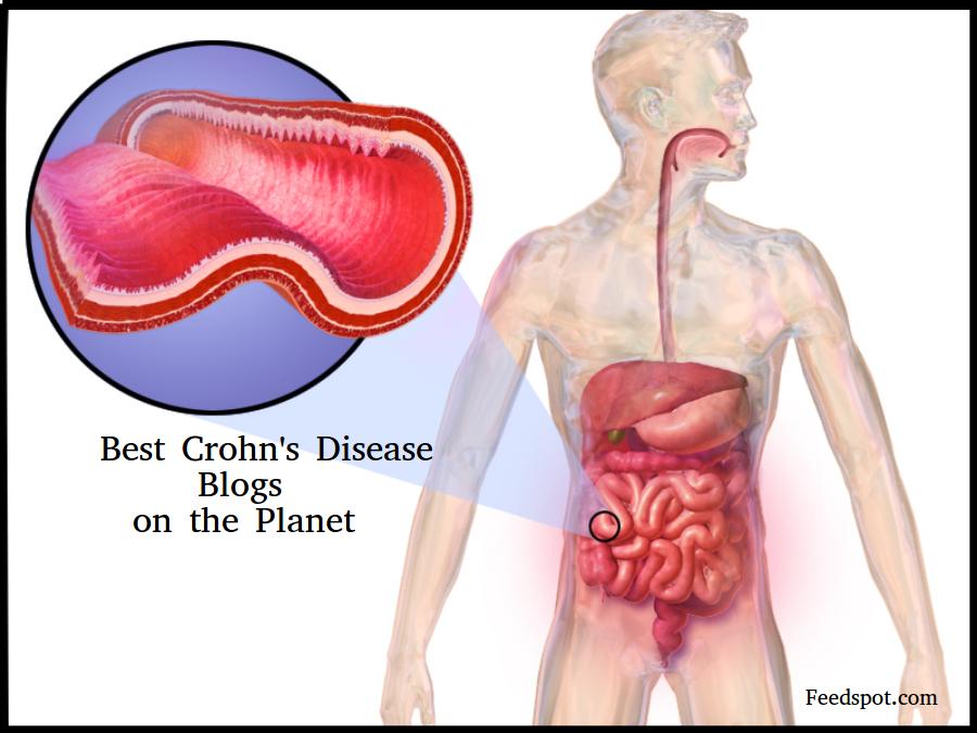 Top 100 Crohns Blogs & Websites in 2019 | Crohn's Disease Blogs