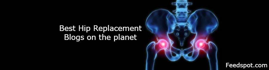 Top 25 Hip Replacement Blogs & Websites | Hip surgery Blog