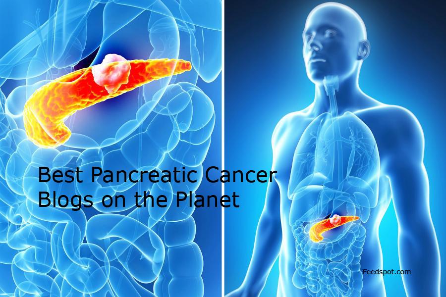 CBD în cancerul pancreatic – docspoint.ro – libertatea naturală.